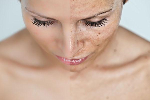 menopausa-macchie pelle