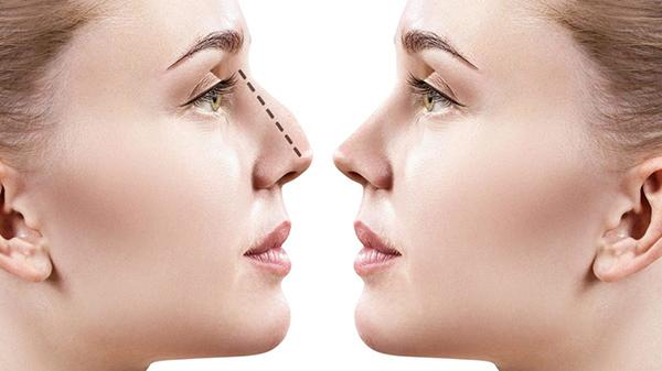 interventi estetici rinoplastica