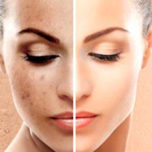 Ecco 5 rimedi naturali contro le macchie sulla pelle del viso