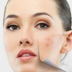 Ecco come prevenire e attenuare quelle brutte macchie della pelle