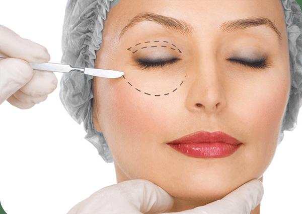 blefaroplastica- chirurgia-plastica